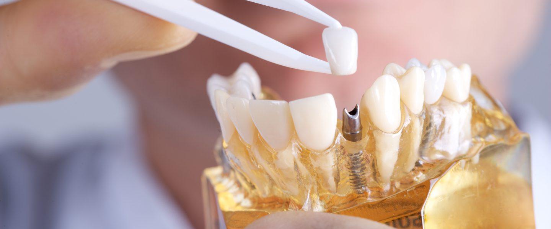 Zahnarztpraxis Berlin Kreuzberg - Implantate für mehr Lebensqualität
