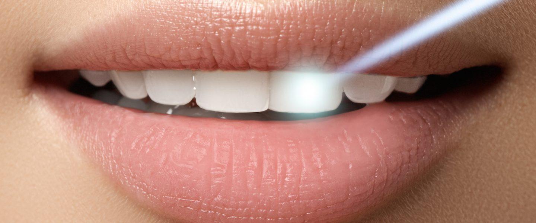 Zahnarztpraxis Berlin Kreuzberg - effiziente Laserbehandlung